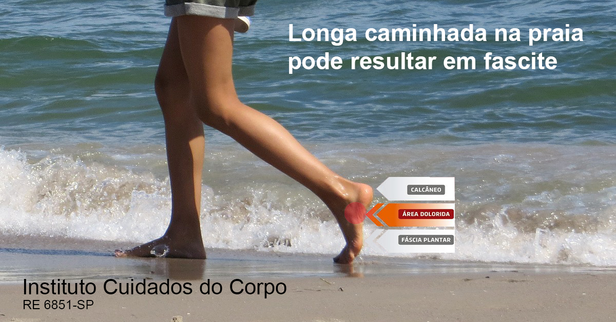 Uma longa caminhada descalço na praia pode resultar em fascite.